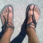 Alerg în sandale