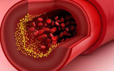 Colesterolul Mărit Poate fi Rezolvat Prin Refacerea Metabolismului