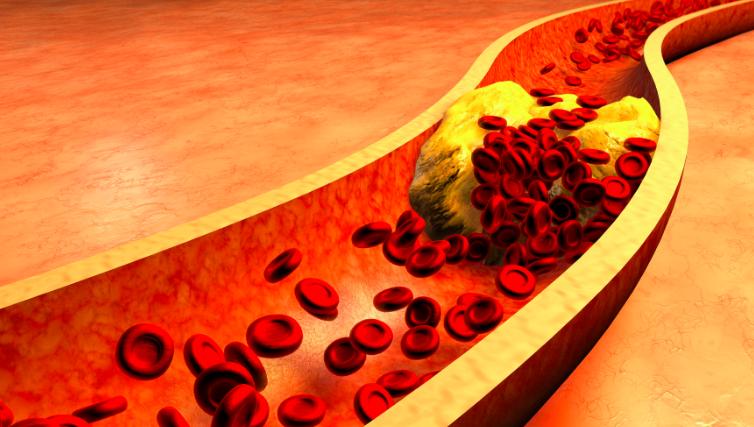 Colesterol transportat în siguranță către celule